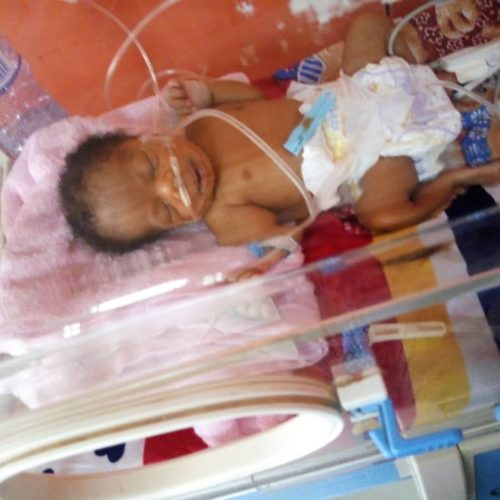 30 Days Old Yakubu Aishah Urgently Needs Your Help!