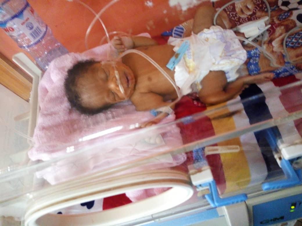 30 Days Old Yakubu Aishah Urgently Needs Your Help!